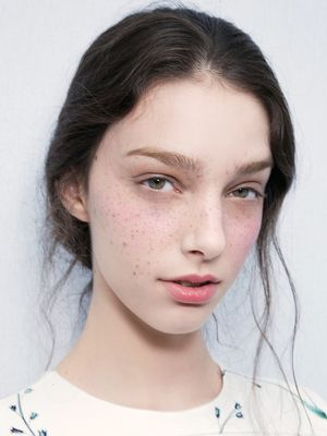 Dermatologists Agree: These 6 Common Skin Conditions Can't Be Cured