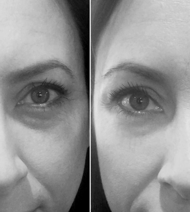 We Tried the Magic Eye Bag-Banishing Cream! See the Before and After
