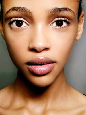 5 Reasons Your Acne Keeps Coming Back