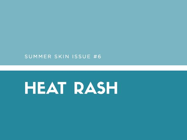 Summer Skin Issue #6: Heat Rash