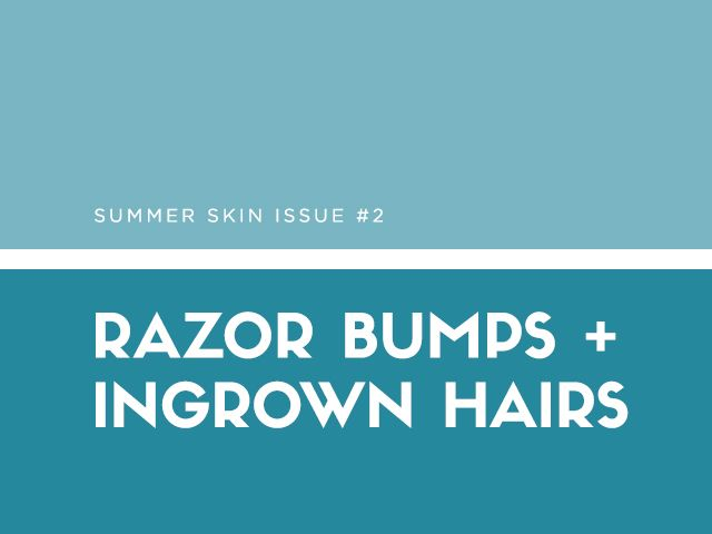 Summer Skin Issue #2: Razor Bumps And Ingrown Hairs